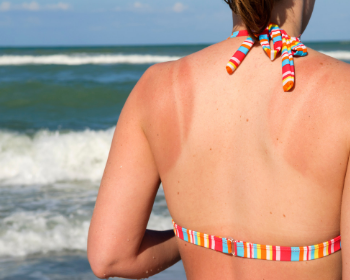 Sunburn: How to Treat It, and How We Misunderstand It